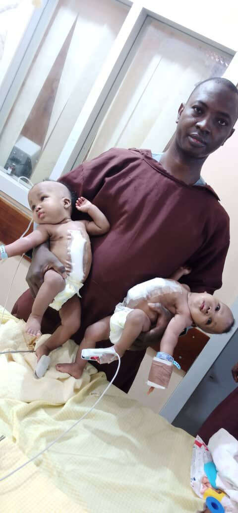 Nigerian hospital separates conjoined twins (Photos)