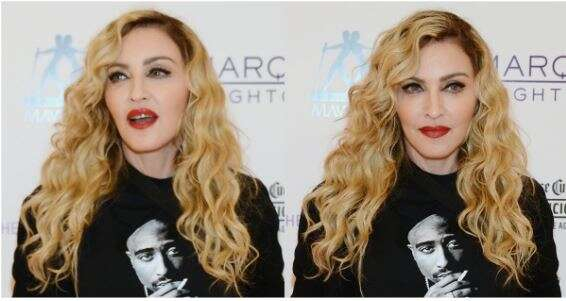 Madonna shows off the scars she got from her hip surgery