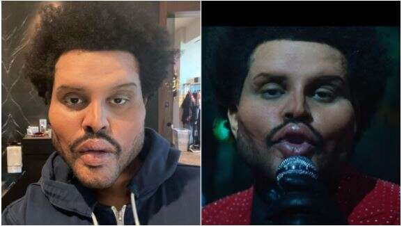 American singer, The Weeknd shocks the world with his new face